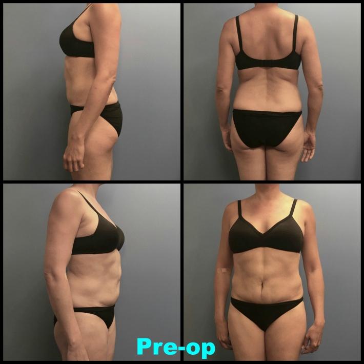 Liposuction, Plastic Surgery, Kuisle, Before
